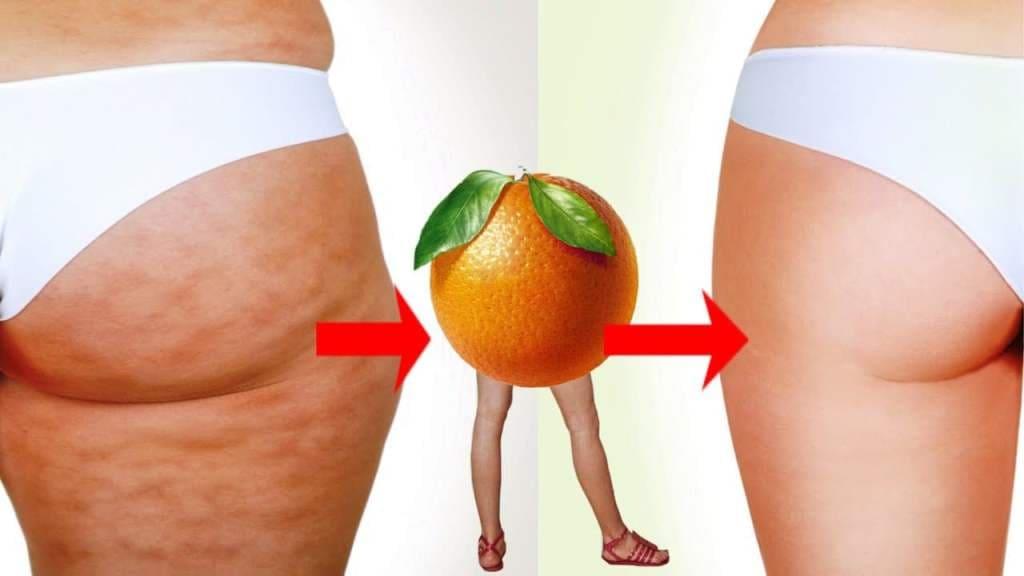 Целлюлит - апельсиновая корка